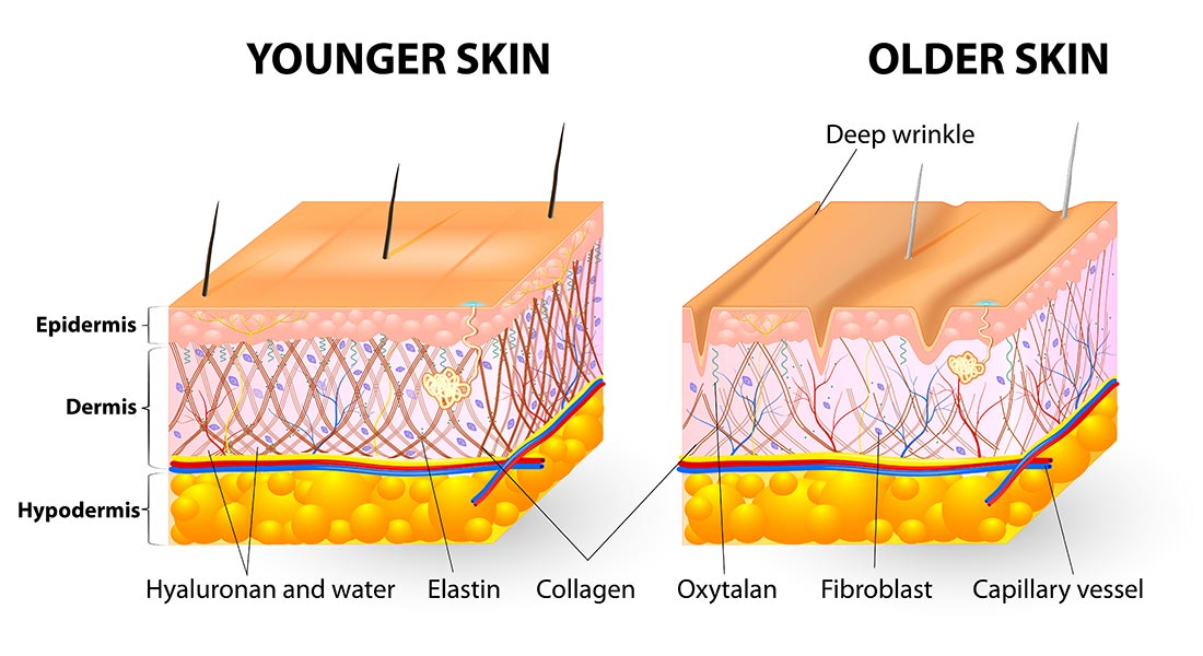 diagram comparing younger and older skin structures