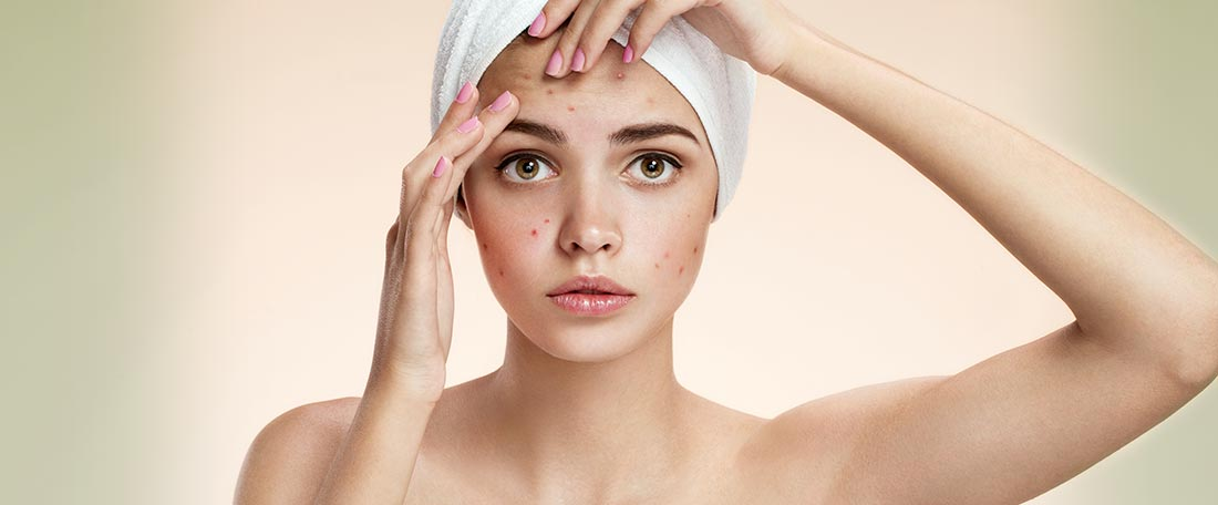 What causes acne and what factors contribute to making acne