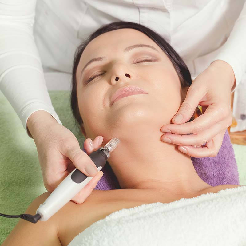 microneedling device in use